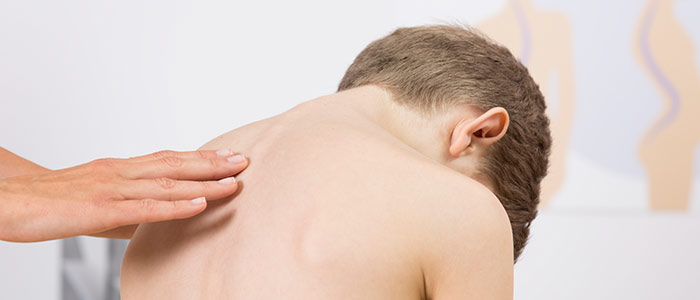 Chiropractic Care for Scoliosis